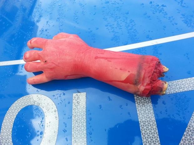 """Photo of Hagen: """"Blutige"""" Plastikhände gefunden"""