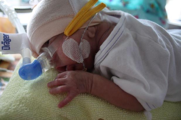 Frühchen des Perinatalzentrums Level 1 im Inkubator (Foto: DRK-Kinderklinik Siegen gGmbH)