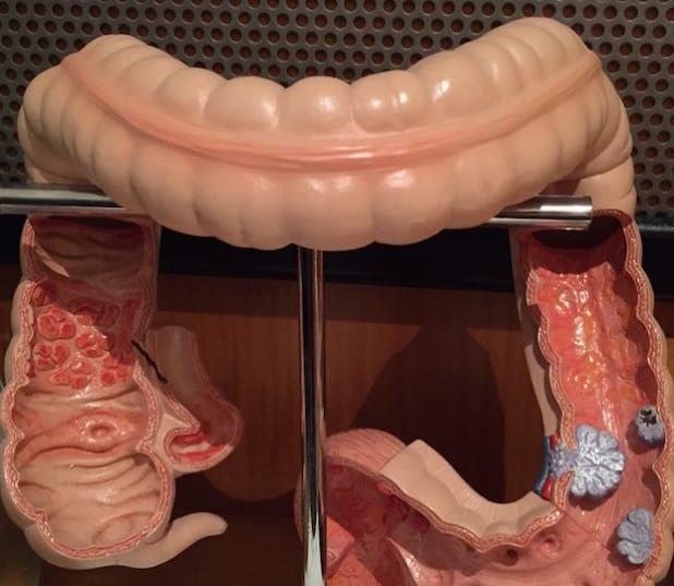 Der Blick in den Darm ist interessanter, als so mancher denkt (Quelle: Marienkrankenhaus Soest).